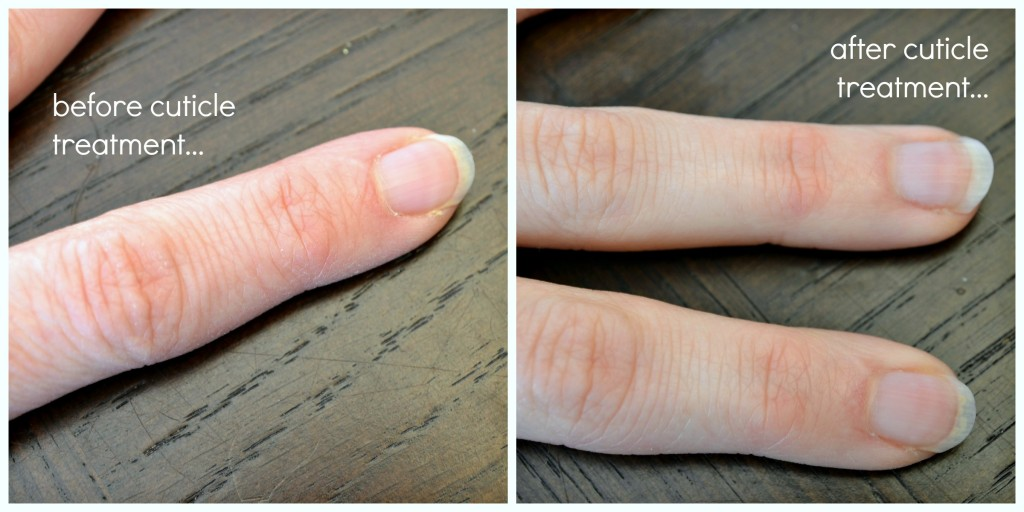 cuticle treatment